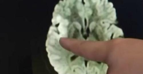 Hình ảnh các phần bị tụ máu trên não của bệnh nhân.