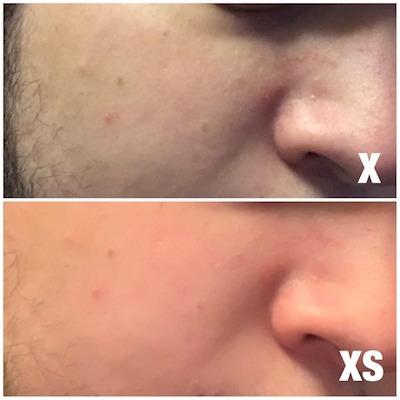 Làn da chụp từ iPhone Xs trông mịn và giấu khiếm khuyết hơn so với trên iPhone X.