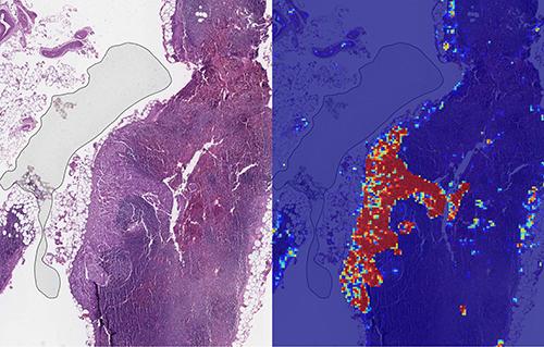 Google AI có thể phát hiện ung thư vú với độ chính xác 99% trong điều kiện phù hợp.