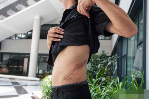 Vết mổ còn lại sau ca phẫu thuật thận 7 năm trước của Tiểu Vương.