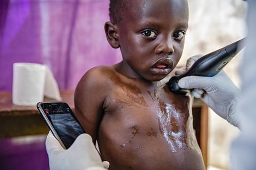 Các hình ảnh sau khi thu được sẽ được tải lên mạng Internet để các chuyên gia y tế trên thế giới hỗ trợ đánh giá và chẩn đoán bệnh.
