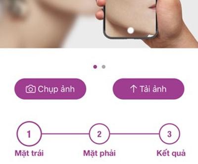 Người dùng chỉ cần chụp ảnh và hệ thống AI sẽ chẩn đoán cũng như đưa ra gợi ý điều trị.
