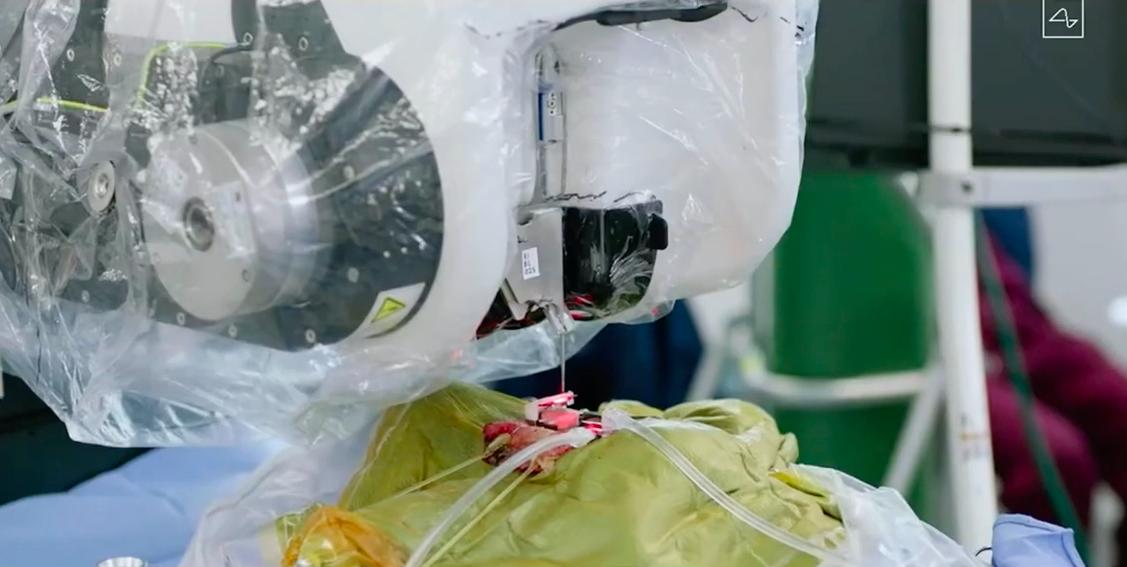 Theo Musk, robot có thể đặt hệ thống chip não một cách nhẹ nhàng, không tổn thương não hoặc mạch máu. Toàn bộ quá trình thực hiện mất vài giờ và chỉ để lại một vết sẹo nhỏ.
