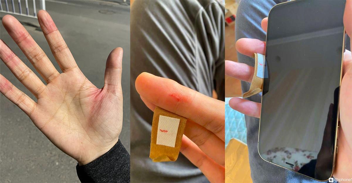 Một số người dùng iPhone 12 bị tổn thương tay do cạnh quá sắc.