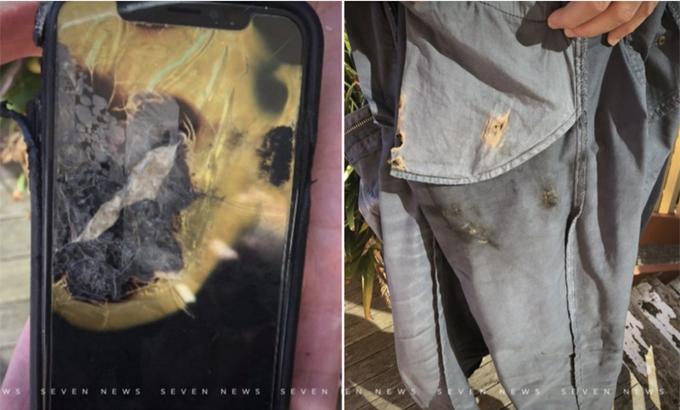 iPhone X phát nổ trong túi quần. Ảnh: 7 News.